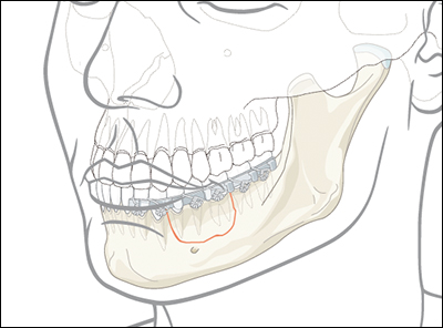 Oral and Maxillofacial Surgery – Case 1 – Trauma