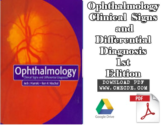 Download Ophthalmology Clinical Signs and Differential Diagnosis 1st