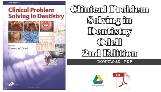Buy clinical problem solving in dentistry